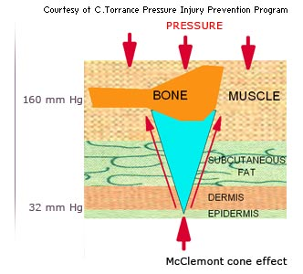 the development of the pressure ulcer in the medical practices Oriented evidence, usual practice, expert opinion assessment of an established pressure ulcer involves a complete medical evaluation of the patient a compre- pressure ulcers because they may not feel discomfort or.